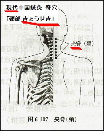 jiaji.jingzhui_2.jpg