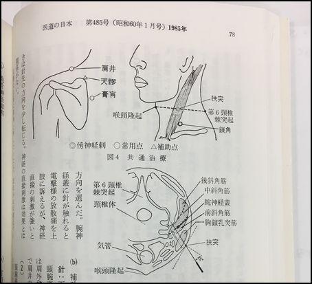 kinoshita_1985_001.jpg